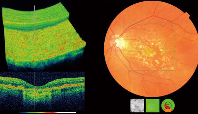 OCT Eye Scan Canterbury Kent