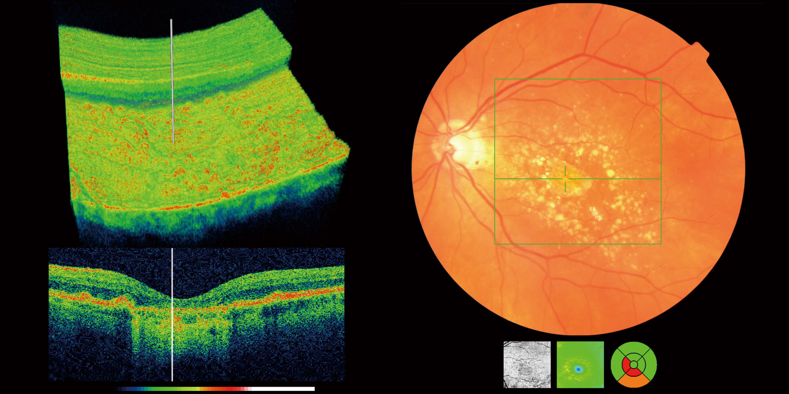 OCT Eye Scan Canterbury Kent